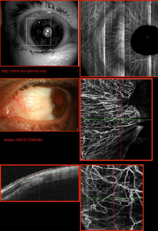 Optovue AngioVue e