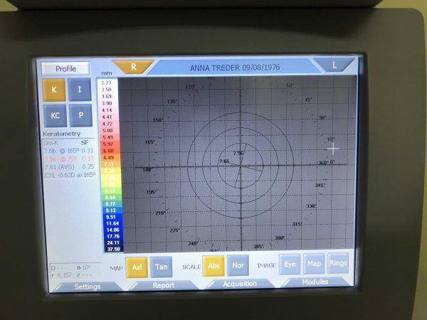 Topcon CA-200F_keratometry