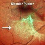 Macular-Pucker