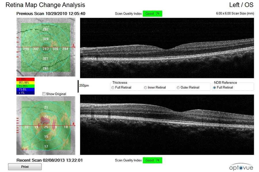 retinal-thickness-map